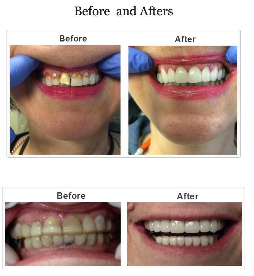 Cosmetic Dentist Huntsville AL